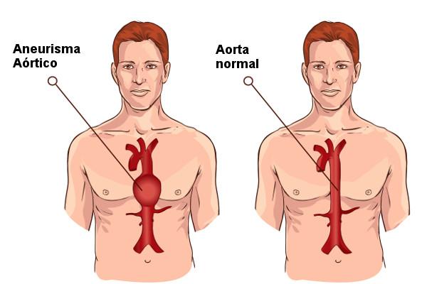 No aneurisma aórtico, observa-se a dilatação anormal da aorta.