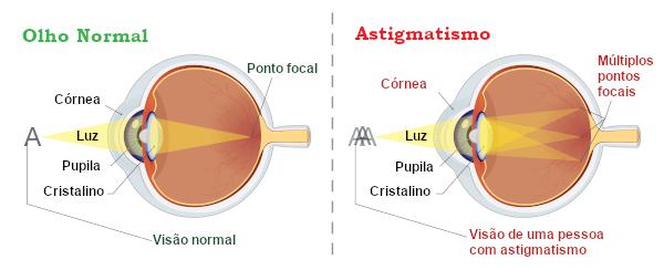 O astigmatismo pode ocorrer como consequência de um formato irregular da córnea.