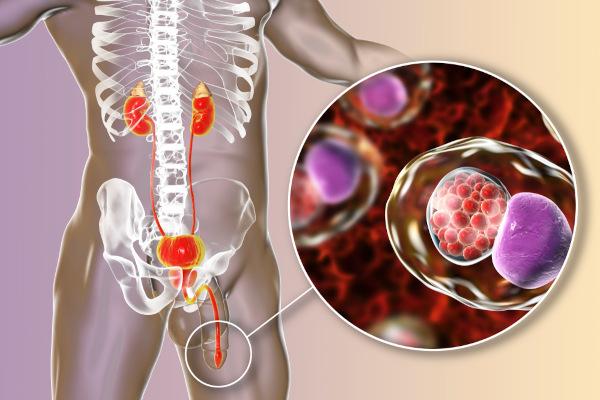 Bactérias podem invadir a uretra e provocar uretrite.