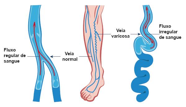 Observe na figura o fluxo irregular de sangue em uma veia varicosa.