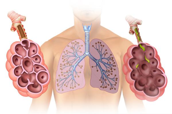 enfisema pulmonar, as paredes alveolares são destruídas, comprometendo-se a captação de oxigênio.