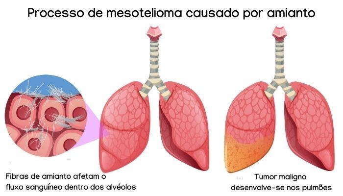 A mesotelioma é uma das doenças causadas pela exposição ao amianto.