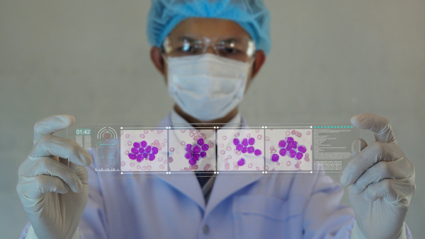A leucemia afeta os glóbulos brancos.