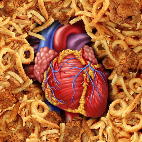 O consumo de gordura trans está relacionado com o desenvolvimento de doenças cardiovasculares.