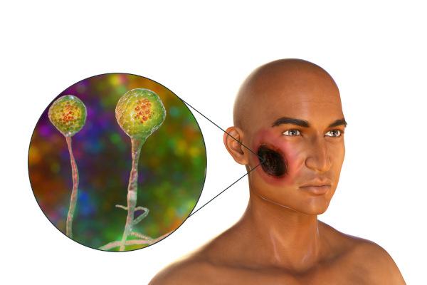 A mucormicose pode provocar necrose da pele e palato.
