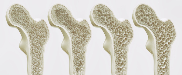 Ilustração dos estágios da osteoporose.