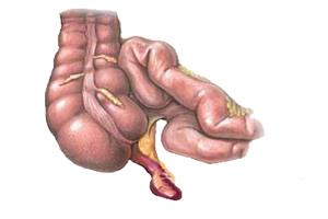 O órgão doente pode infectar todo o abdômen
