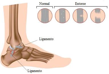 As entorses são causadas por estiramentos nos ligamentos