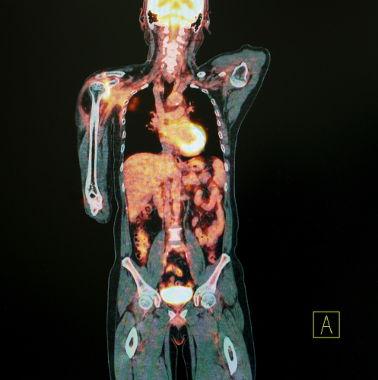 Imagem obtida por meio de uma tomografia por emissão de pósitrons