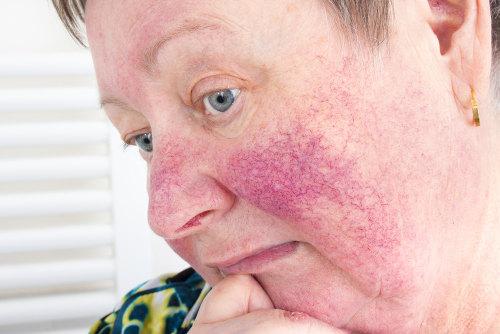 A pessoa com rosácea apresenta vasos finos dilatados na pele (telangiectasias).