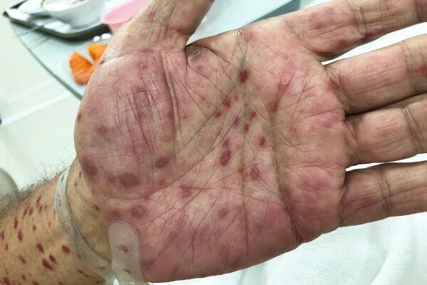 Na sífilis secundária, há o surgimento de várias erupções na pele.