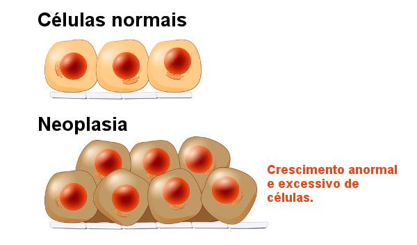 Nas neoplasias ocorre o aumento anormal de células.